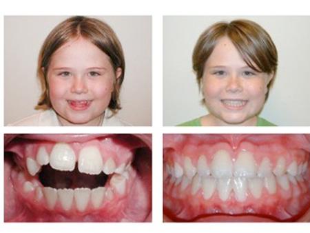 до и после лечения LM-активатором