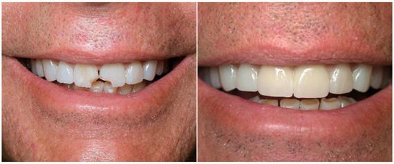 до и после реставрации скола на зубах