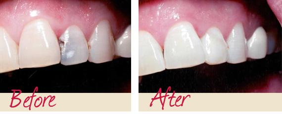 восстановление потемневшего зуба