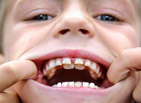 полиодонтия у мальчика