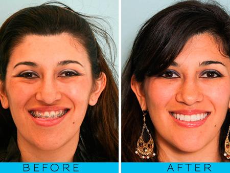 после операции на челюсти