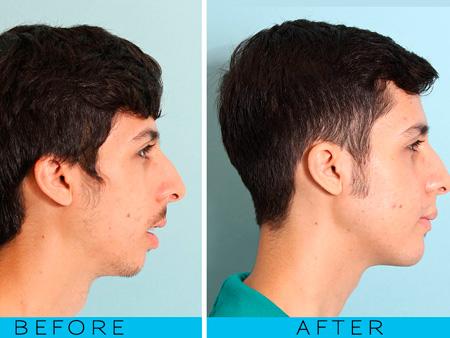 после проведения остеотомии челюсти