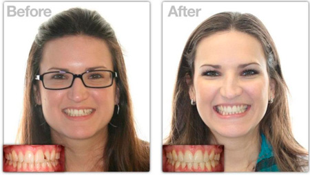 прикус зубов после Invisalign