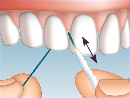 применение Суперфлосса для очищения зубов