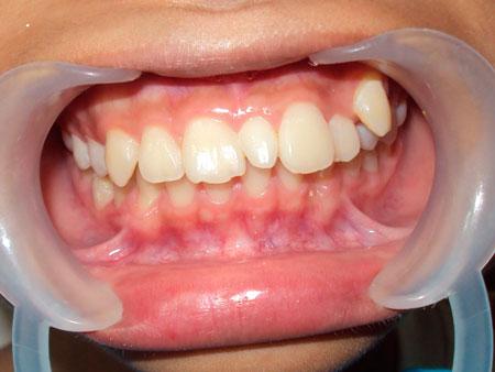 проблема гипердонтии зубов