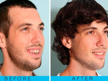 результат проведения остеотомии челюсти