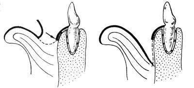 схема вестибулопластики