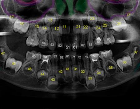 снимок зубов с нумерацией
