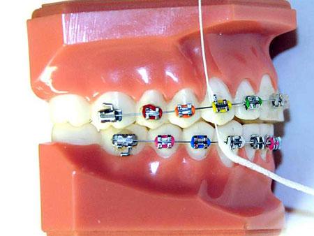Преимущества зубных нитей «Суперфлосс»
