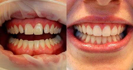 коррекция промежутков между зубами