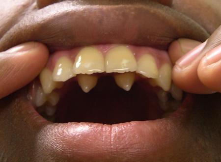 вид полиодонтии