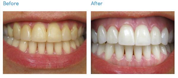 до и после ламинирования зубов