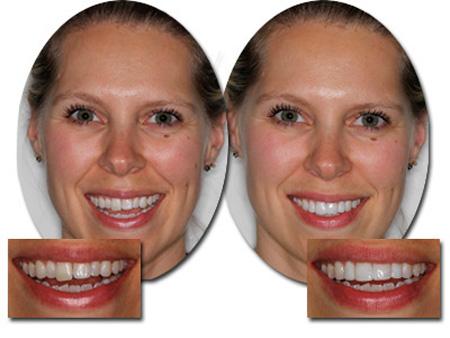 до и после подпиливания переднего зуба