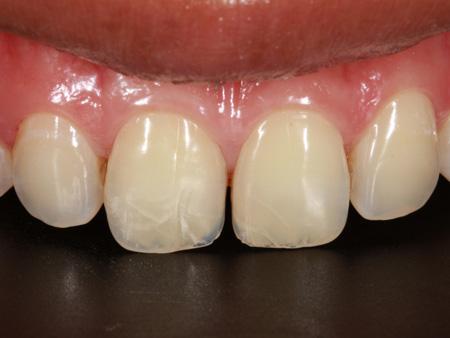 косые трещины на передних зубах