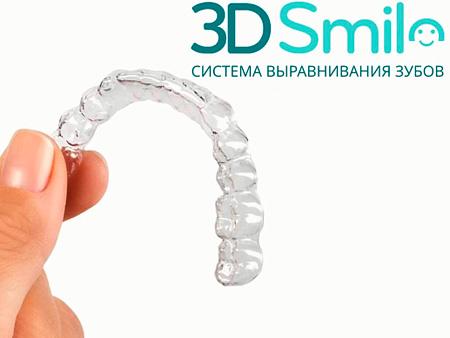 Исправление прикуса капами 3D Smile