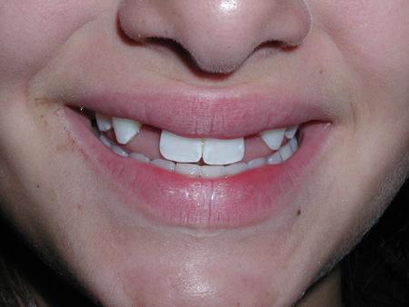 отсутствие нескольких зубов у взрослого
