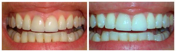 результат ламинирования зубов