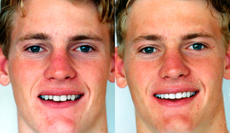результат подпиливания зубов