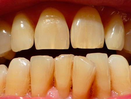 вертикальные зубные трещины
