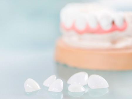 винировые накладки на зубы