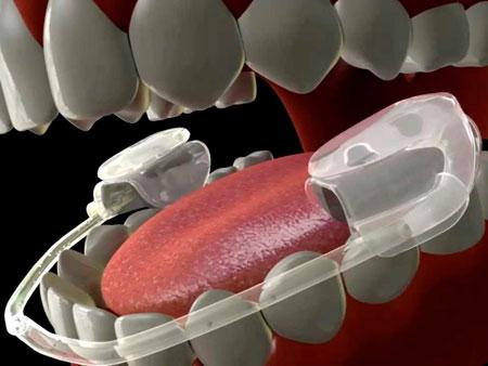 Функции сплинт-терапии в стоматологической практике