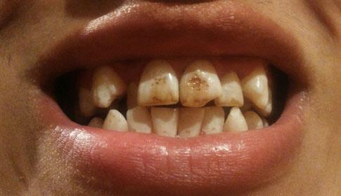 можно ли на кривые зубы поставить виниры