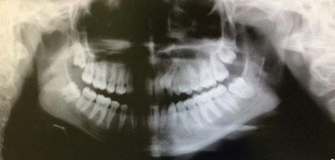 снимок ретинированного зуба