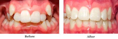 до и после выравнивания клыков