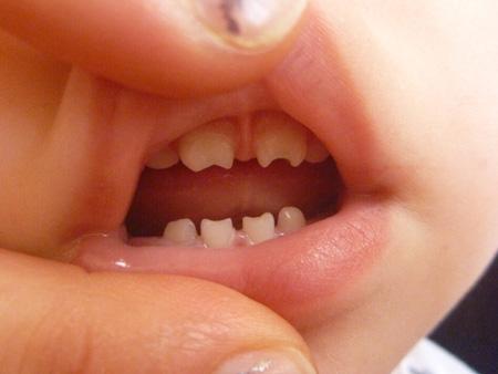 Разновидности аномалий формы зубов
