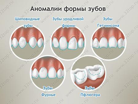 аномалии формы зубов