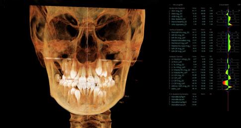 снимок-проекция пациента