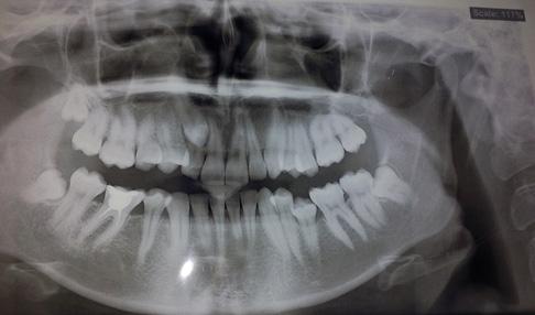 панорамный снимок зубов пациента