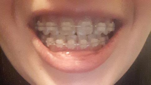 зубы в брекетах спустя 10 месяцев