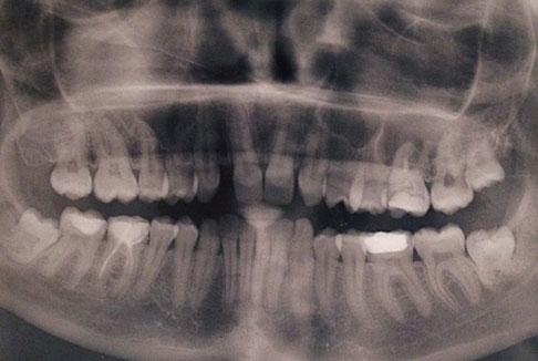 присланный снимок зубов Оксаны