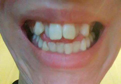 неровные зубы пациента