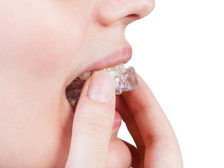 ношение ортодонтических кап