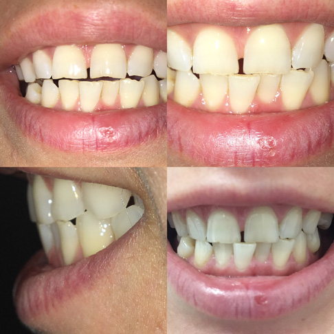 неровные истершиеся зубы