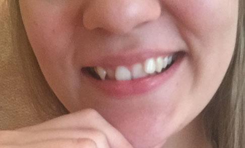 торчащие зубы