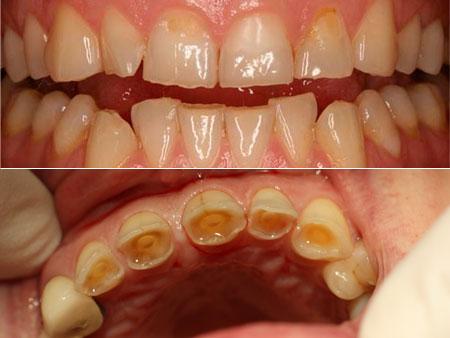 формы патологической стираемости зубов