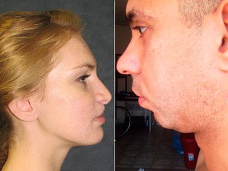 примеры недоразвития нижней и верхней челюсти