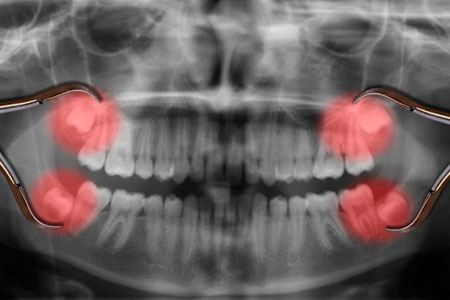 ретенция зубов мудрости