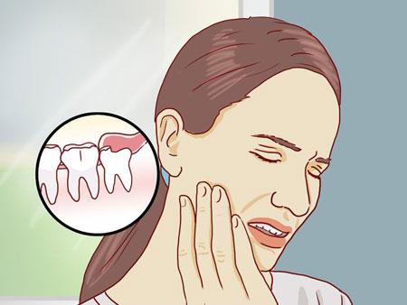 схематическая ретенция зуба