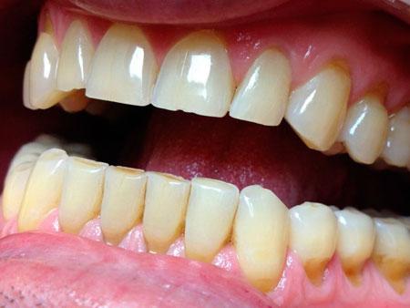 Всё о патологической стираемости зубов
