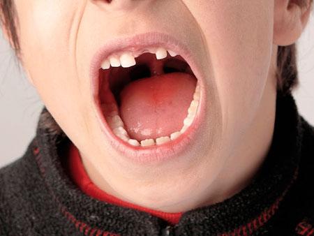 Причины и лечение ретенции зубов