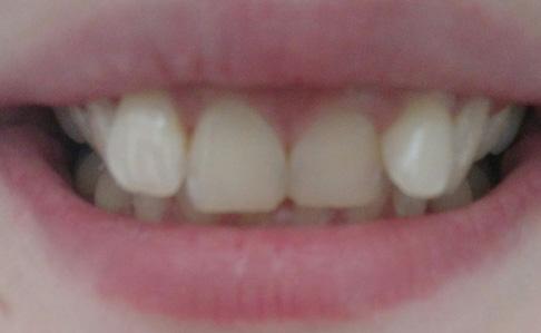 неровные зубы у взрослого
