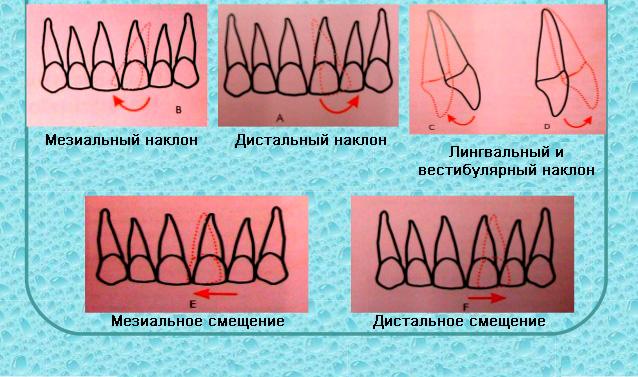 наклоны и смещение зубов