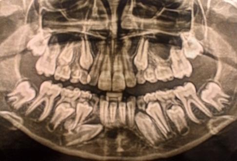 ортопантомограмма мальчика 10 лет