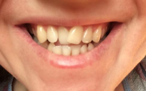 кривые зубы в 28 лет