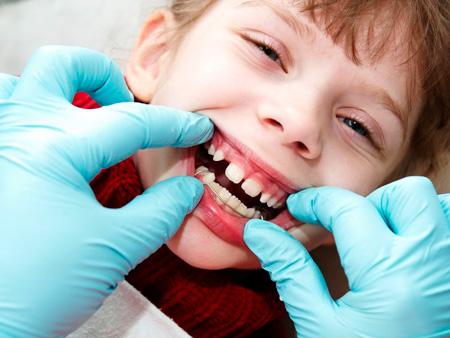 Функции аппарата Френкеля в ортодонтии