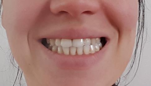 асимметрия челюсти